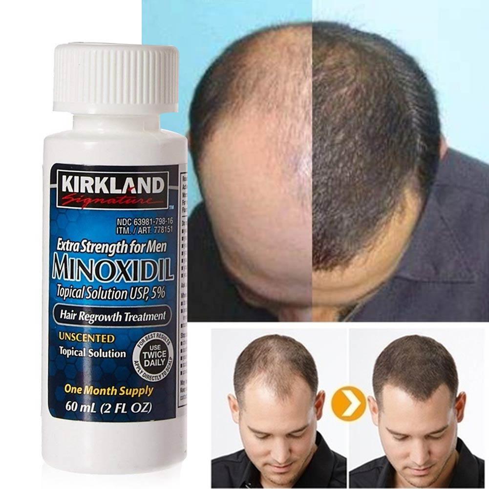Minoxidil Kirkland Signature Para Barba e Cabelo - Original Importado - 3 Unidades