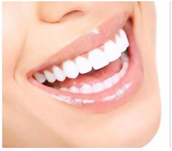 Clareador Dental Power Bleaching 16% - Bm4