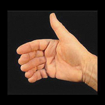 Sexto dedo - Sixth Finger - Vernet