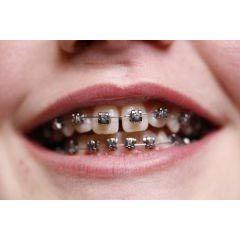 Altitude SL  - N&F Ortho Dental