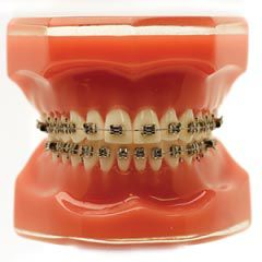 FLI Twin  - N&F Ortho Dental