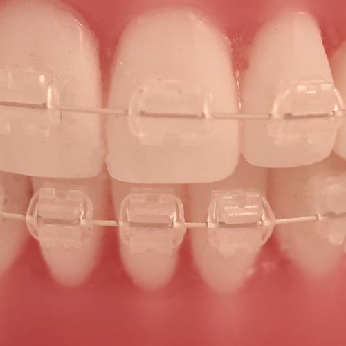 FLI Wire - Aço Estético  - N&F Ortho Dental