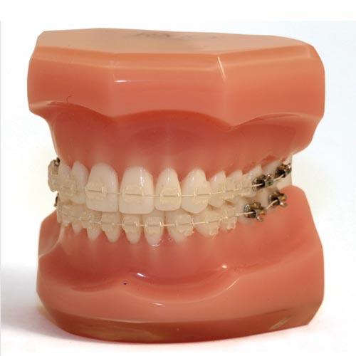 FLI Wire - NiTi Estético  - N&F Ortho Dental