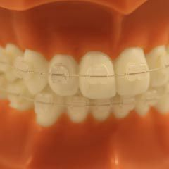 Signature III (Porcelana) - N&F Ortho Dental