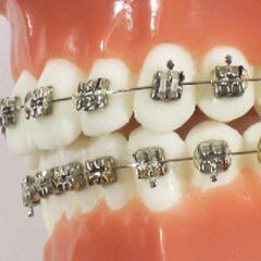 Synergy FX  - N&F Ortho Dental