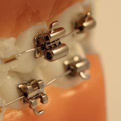 Tubo Duplo - Primeiro molar MX / MN - Direito / Esquerdo 0ºA 0ºT  - N&F Ortho Dental