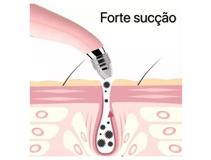 Aparelho Removedor de Cravos e Espinhas Poros Limpeza Facial Rosto Branco