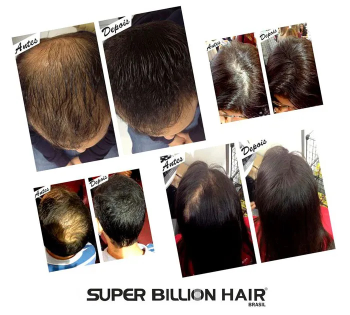 Kit c/ 3 Fibras de Queratina em Pó Super Billion Hair 8 g