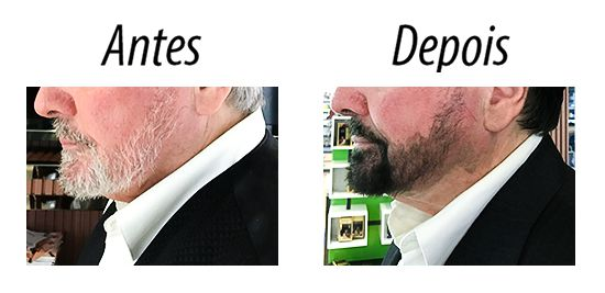Kit c/ 3 Tinta / Shampoo Escurecedor de Barba Dexe - Preto 15 ml x 2
