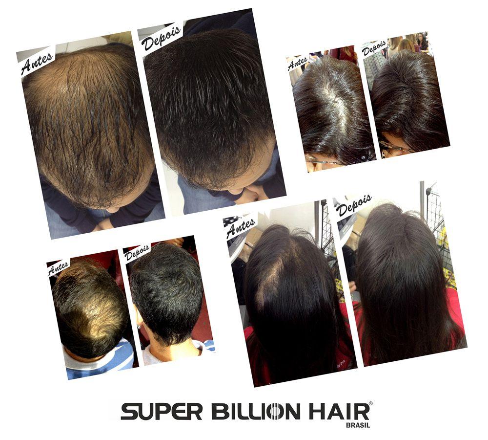 Kit c/ 5 Disfarce para Calvície / Complexo de Fibras de Queratina em Pó Super Billion Hair 25 g + Brinde
