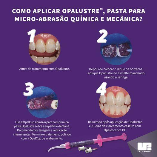 Opalustre - Pasta para Microabrasão