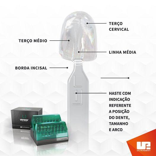 Uveneer - Sistema para confecção de facetas diretas