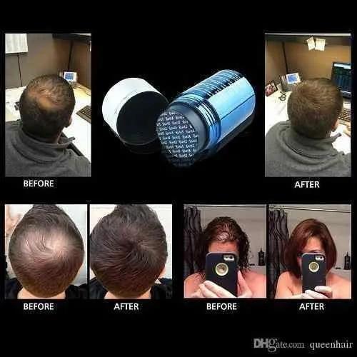Kit 2 Fibra Capilar Para Cabelo Bunee Hair Disfarçe Calvice