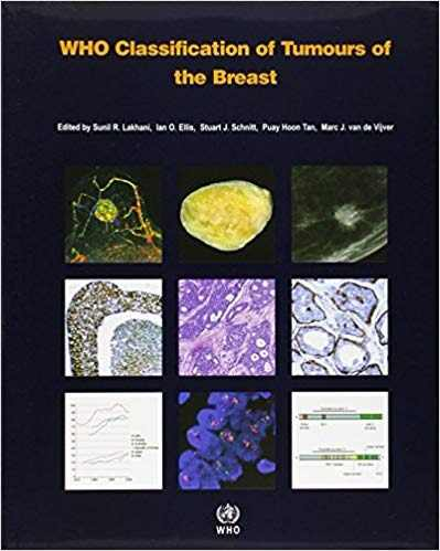 Livro Who Classification Of Tumours Of The Breast  - LIVRARIA ODONTOMEDI