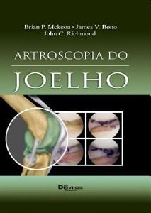 Livro - Artroscopia Do Joelho - Mckeon  - LIVRARIA ODONTOMEDI