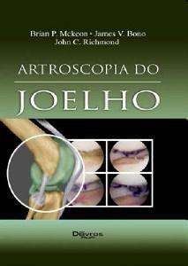 Artroscopia Do Joelho   Mckeon  - LIVRARIA ODONTOMEDI