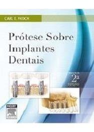 Prótese Sobre Implantes Dentais 2ª Edição - Carl Misch  - LIVRARIA ODONTOMEDI