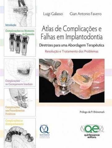 Livro Atlas De Complicações E Falhas Em Implantodontia  - LIVRARIA ODONTOMEDI