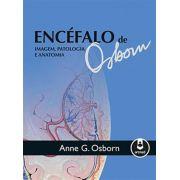 Encéfalo De Osborn - Imagem, Patologia E Anatomia
