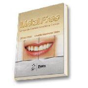 Metal Free Lentes De Contato Dentais E Coroas