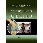 Artroscopia Do Joelho   Mckeon