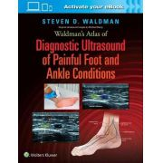 Waldmans Atlas Of Diagnostic Ultrasound Of Painful Foot And