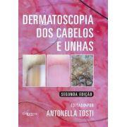 Dermatoscopia Dos Cabelos E Unhas 2ª Edição