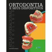 Ortodontia E Seus Dispositivos Atlas Operacional Ortholabor