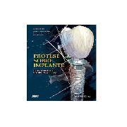 Livro Prótese Sobre Implante: Fundamentos E Sequência Clínic
