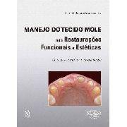 Manejo Do Tecido Mole Nas Restauraçoes Funcionais E Estética