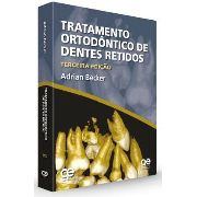 Tratamento Ortodôntico De Dentes Retidos