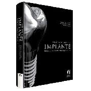 Livro Prótese Sobre Implante: Baseado Em Evidências Científi