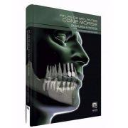 Livro Atlas De Implantes Cone Morse - Da Cirurgia À Prótese