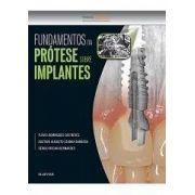 Fundamentos Da Protese Sobre Implantes - 1ª Edição