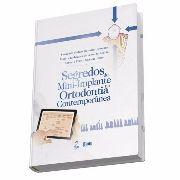 Livro Segredos Do Mini Implante Na Ortodontia Contemporânea
