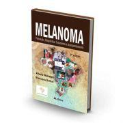 Melanoma - Prevenção, Diagnóstico, Tratamento E Acompanhamen