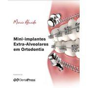 Mini-implantes Extra-alveolares Em Ortodontia