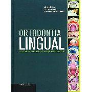 Ortodontia Lingual