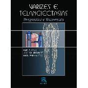 Varizes E Telangiectasias