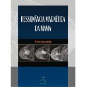 Ressonância Magnética Da Mama