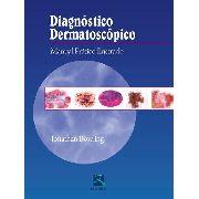 Diagnóstico Dermatoscópico