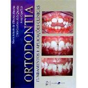 Ortodontia: Fundamentos E Aplicações Clínicas