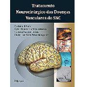 Tratamento Neurocirúrgico Das Doenças Vasculares Do Snc