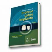 O Passo-a-passo Da Prótese Sobre Implantes