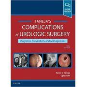 Complications of Urologic Surgery
