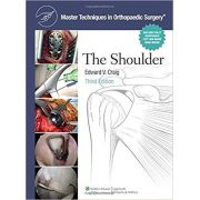 Master Techniques in Orthopaedic Surgery: Shoulder