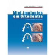 Mini-Implantes Em Ortodontia