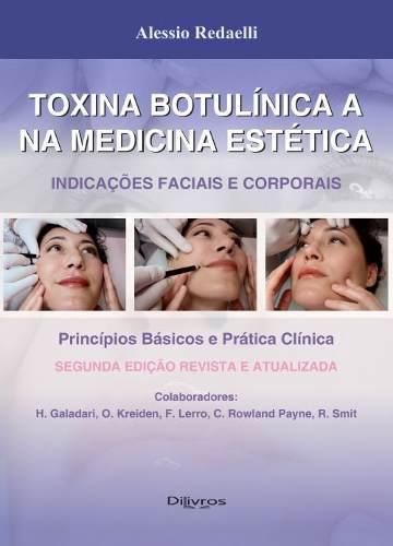 Livro Toxina botulinica a na medicina estetica - indicações faciais e corporais  - LIVRARIA ODONTOMEDI