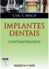 Livro Implantes Dentais Contemporâneos - 3ª Ed. Carl Misch  - LIVRARIA ODONTOMEDI