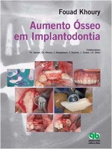 Livro Aumento Ósseo Em Implantodontia  - LIVRARIA ODONTOMEDI